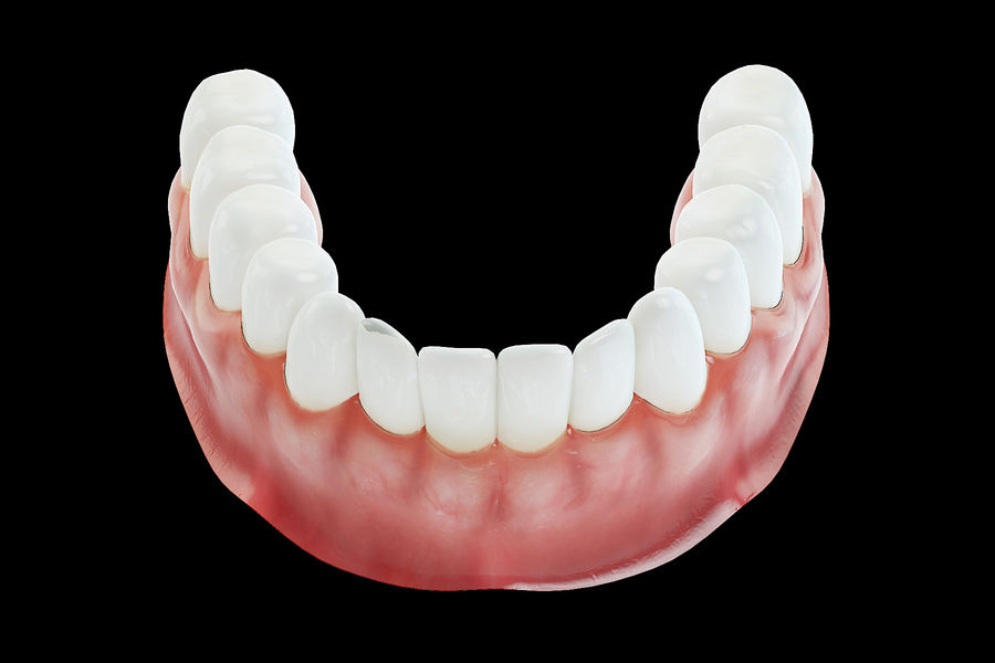 $99 dentures in a day